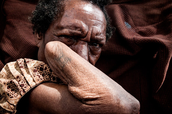 ภาพแห่งประจำปี - ความรุนแรงต่อผู้หญิงในปาปัว ภาพชุดเล่าเรื่องโดย วลาด โซคิน